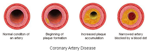 coranery artery disease Coronary artery disease (cad) is a condition which affects the arteries that  supply the heart with blood it is usually caused by atherosclerosis which is a  buildup.